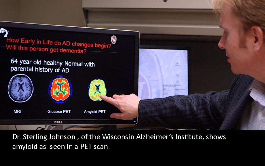 Biomarkers Take Front and Center in Alzheimer's Research